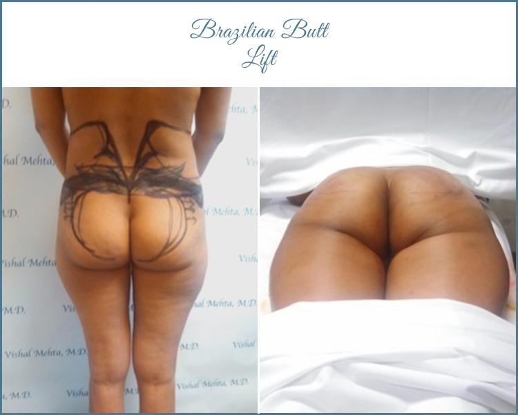 butt5_new