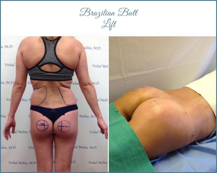 butt6_new